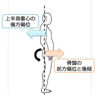 上半身重心の後方偏位