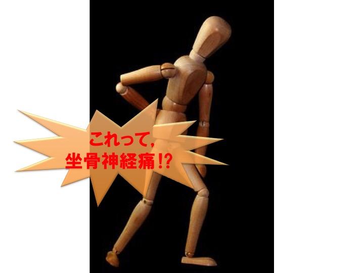 「坐骨神経痛」の正体は⁉️「梨状筋症候群」可能性も
