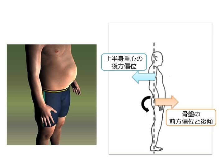 腹部重量過多による上半身重心の後方偏位