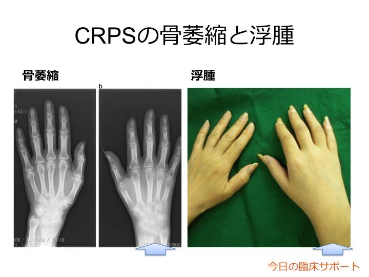 CRPSの骨萎縮と浮腫