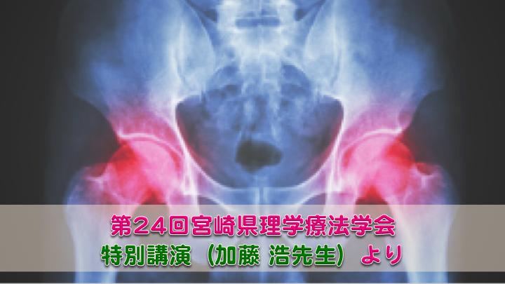 股関節疾患の理学療法に必要な局所的・全身的視点