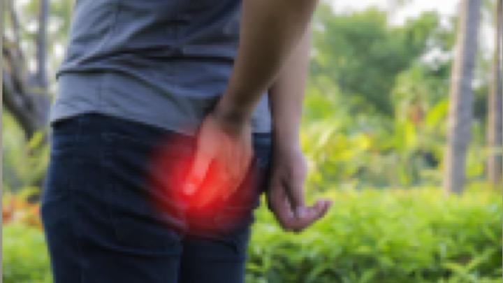 """""""坐骨神経痛""""の鑑別!腰椎椎間板ヘルニアと梨状筋症候群を見分ける"""